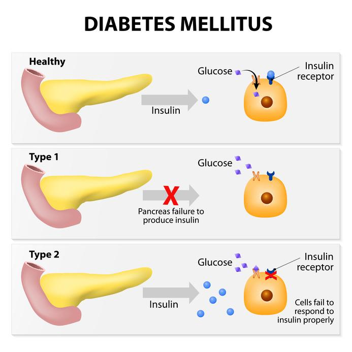 diabetes and blood sugar level